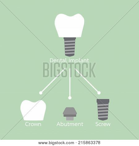 Structure Of The Dental Implant With All Parts Disassembled, Crown, Abutment, Screw