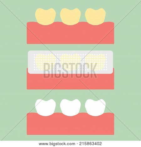 Step Of Usage Teeth Whitening Strip, Yellow To White Tooth