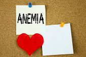 Conceptual hand writing text caption inspiration showing Anemia concept for Medical Diagnosis Iron deficiency aplastic and Love written on sticky note reminder cork background with space poster
