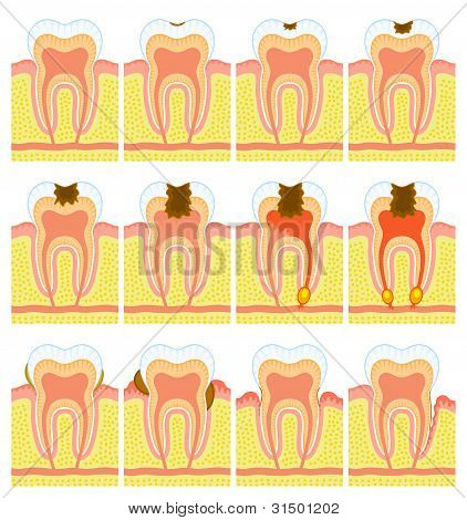 Internal structure of tooth