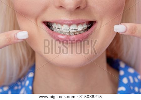 Beautiful Macro Shot Of White Teeth With Braces. Dental Care Photo. Beauty Woman Smile With Ortodont