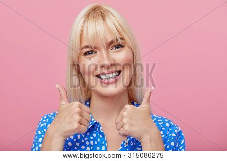 Cheerful Happy Young Woman With Blonde Hair Gesturing Thumb Up While Pointing Finger At Braces On He