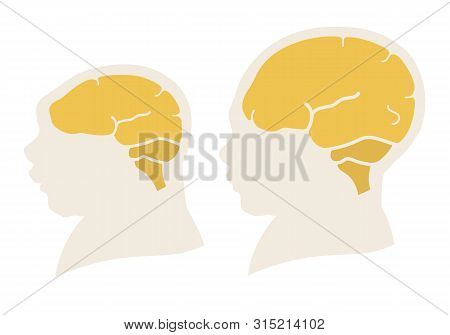 Silhouette Image Of The Head And Skull Of A Newborn Child With A Normal Cranium And With Microcephal