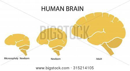 Silhouette Image Of Human Brain Adult, Newborn Child With A Normal Brain And Severe Microcephaly. Vi
