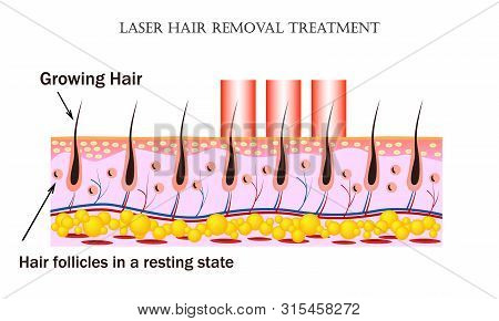 Laser Hair Removal Treatment. Procedure Causes Damage To The Hair Follicle Without Hurting The Skin