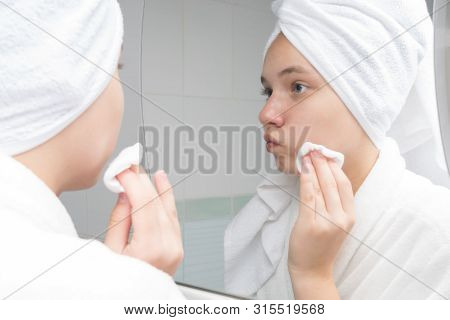 Teenager Girl Wipes Her Face With Acne In The Morning, Standing In Front Of A Mirror