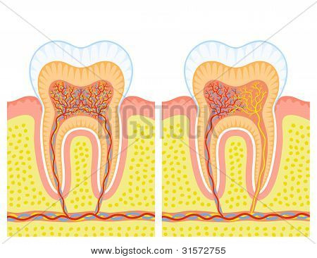Two illustrations of an internal structure of tooth. poster
