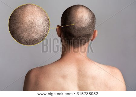 The Concept Of Male Alopecia And Hair Loss. Rear View Of The Mans Head With A Bald Spot. Bare Should