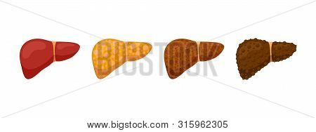 Stages Human Liver Damage Concept. Healthy Liver Steatosis Fatty Nash Fibrosis And Cirrhosis. Vector