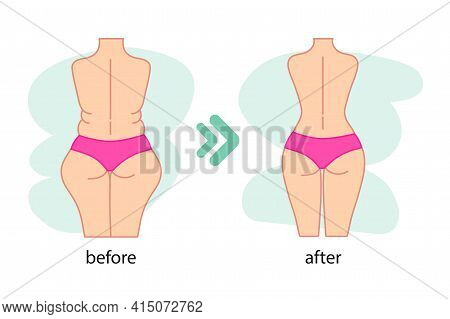 Fat And Slim Woman Figure, Before And After Weight Loss. Women Waist And Buttocks Weight Loss, Diet,