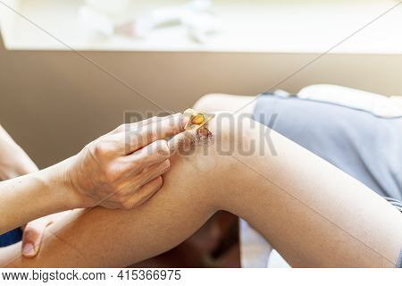 A Mother Is Removing Old Adhesive Bandage Antiseptic From The Bruised Skin Over The Knee Cap Of Her