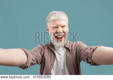 Happy Albino Guy With Unusual Appearance Taking Selfie On Turquoise Studio Background, Smiling At Ca