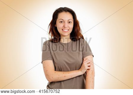 A Young Woman Is Nervously Scratching Her Hands For Rashes And Redness. Beige Background. The Concep
