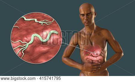 Pain In Stomach, Gastric Ulcer, Conceptual 3d Illustration. Dark-skinned Man With Highlighted Stomac