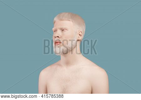 Albinism Concept. Thin Albino Man Posing Without Shirt And Lookig Aside On Turquoise Studio Backgrou