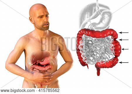 Abdominal Pain And Cramping In A Male Patient Because Of Irritable Bowel Syndrome, Conceptual 3d Ill