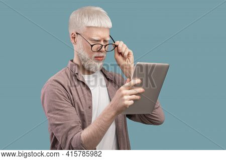 Strange Content. Surprised Albino Man In Glasses Looking In Digital Tablet And Reading News On Turqu