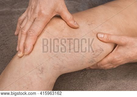 The Hands Of An Elderly Woman Shows On Varicose Veins, Sick Female Legs.
