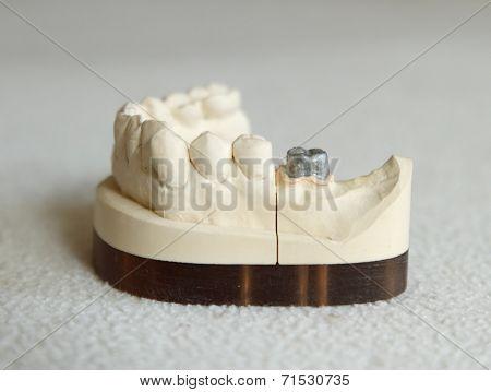 Zirconium or porcelain crown preparation