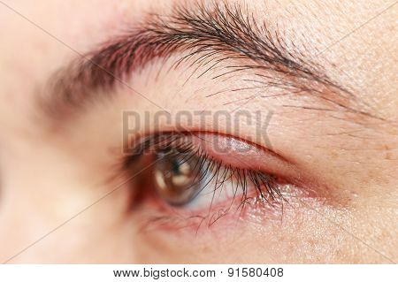 Left Upper Eye Lid Abscess