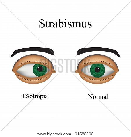 Diseases of the eye - strabismus. A variation of strabismus - Esotropia