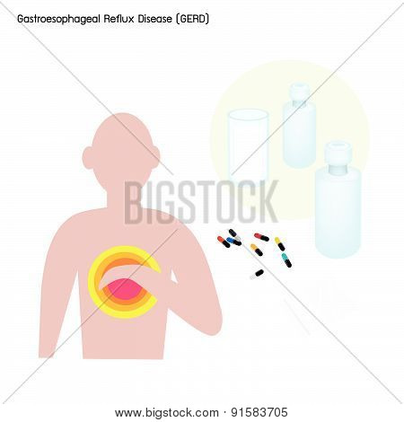 Gastroesophageal Reflux Disease Or Gerd With Treatment
