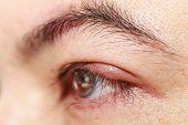 "Close up left upper eye lid abscess ""stye or hordeolum"" poster"
