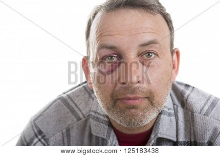 Man with Black Eye Shiner. Man's face after the fight and assault. Middle-aged Caucasian male Emotional Portrait with a Real Bruise after the fight. Bully and Teaser. HiddenViolence