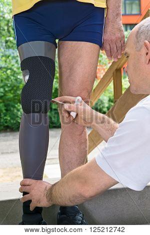 Therapist Adjusting Prosthetic Leg