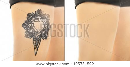 Tattoo on male knee. Laser tattoo removal concept