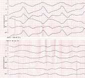 """Emergency cardiology. Tape ECG with idioventricular rhythm (""""dying heart"""") poster"""