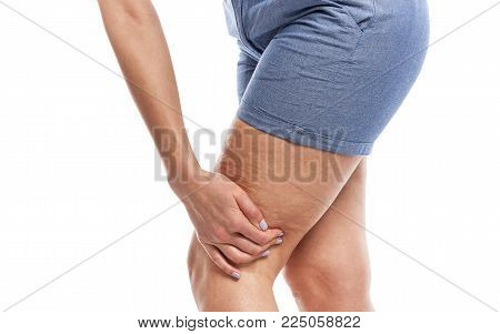 Fat and cellulite on the legs. Isolated on white background.