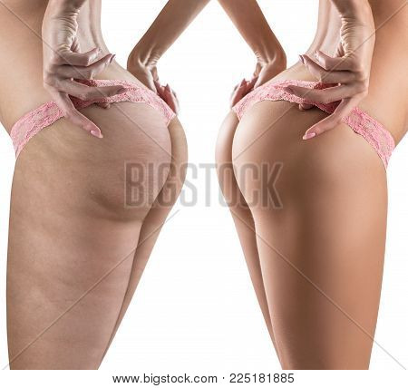 Female buttocks before and after cellulite. Isolated on white. Side view.