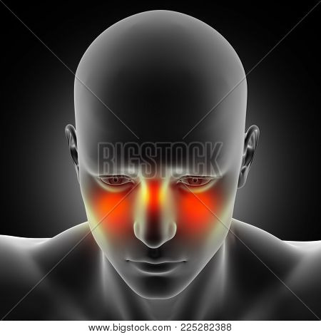 3D render of a male medical figure with sinus pain highlighted