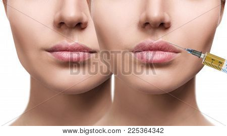 Woman before and after lips filler injections. Beautician procedure concept. poster
