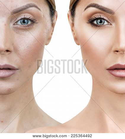 Comparison Portrait Of Young Woman Before And After Retouch And Treatment.