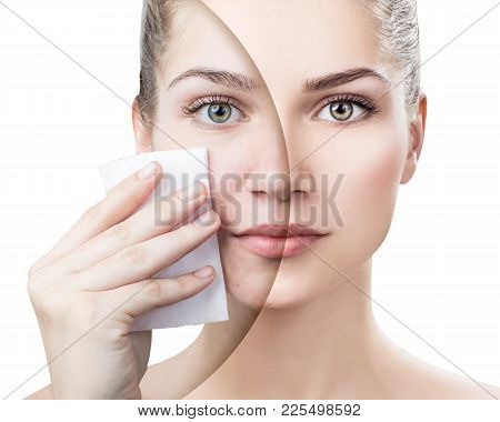 Young Woman Cleaning Her Face By Napkins. Skincare Concept. Maku-up Removal Napkins.