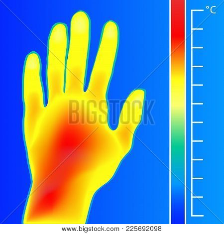 Thermal Imager Medical Scan Human Hand Vector Illustration. The Image Of A Men Arm Using Infrared Th