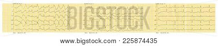 Emergency Cardiology. Ecg Tape With Paroxysm Of Atrial Fibrillation And Restoration Of Sinus Rhythm