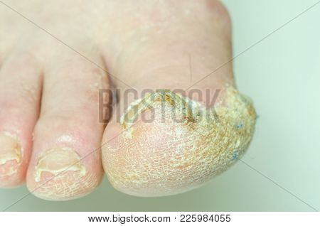 Extreme Bad Foot Skin Bacterial Fungal Infection With Damaged Nail Close Up