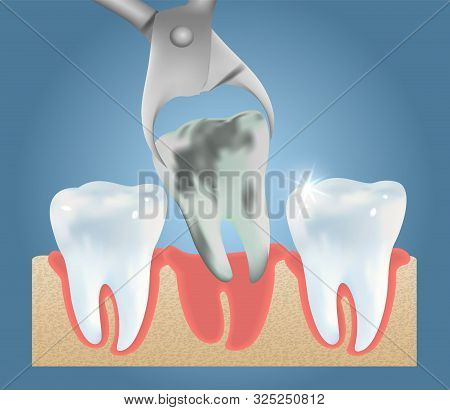 Tooth Extraction Vector Medical Poster Design Template