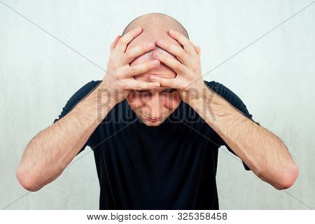 A Young Balding Bald Man Yells And Screams Holding His Head. The Concept Of Baldness Loss Of Hair In