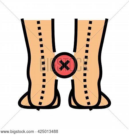 Curvature Of Legs Inward Color Icon Vector. Curvature Of Legs Inward Sign. Isolated Symbol Illustrat