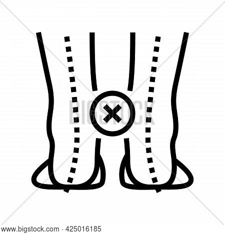 Curvature Of Legs Inward Line Icon Vector. Curvature Of Legs Inward Sign. Isolated Contour Symbol Bl
