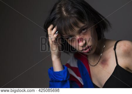 Females Violence Ideas. Caucasian Female Victim Of Domestic Family Violence And Abuse With Multiple