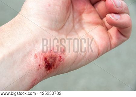 Bloody Wound On The Palm, Arm, Wrist After An Accident Or Fall. First Aid In Wound Treatment. Treatm
