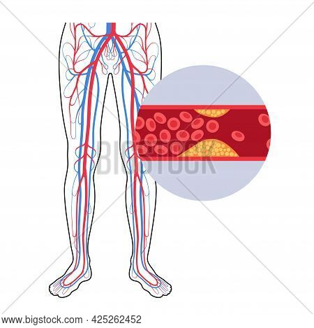 Peripheral Artery Disease. Ischemia In Leg. Cholesterol In Human Blood Vessel. Pad Concept. Fat Cell