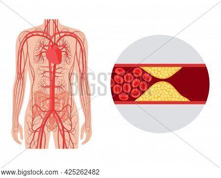 Cardiac Ischemia, Cholesterol In Human Blood Vessels. Myocardial Problem. Fat Cells In Vein Artery.