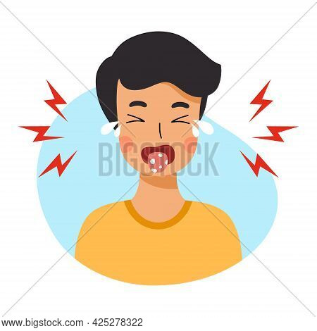 Сhild Has Stomatitis In Mouth. Diseases Of Oral Cavity. Candidiasis In Boy.
