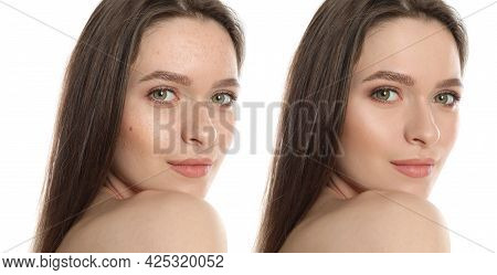 Photo Before And After Retouch, Collage. Portrait Of Beautiful Young Woman On White Background, Bann